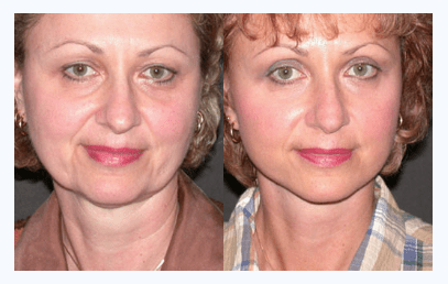 How Much Does A Facelift Cost Orlando Florida Plastic Surgeon