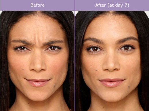 How Much Do Botox Injections Cost At Fiala Aesthetics In Orlando