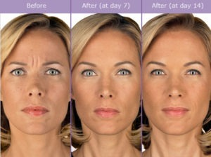 Cosmetic Surgery Plastic Surgery In Florida Orlando Florida Page 2