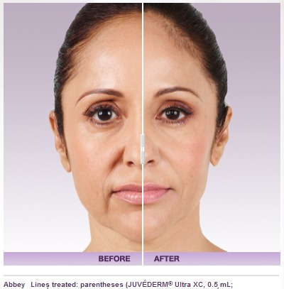 Cosmetic Injections | Plastic Surgery In Florida - Page 2